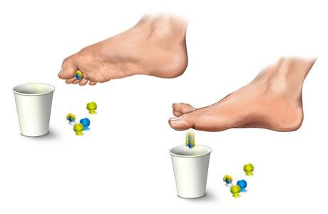cure for plantar fasciitis heel pain